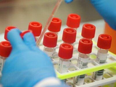 Роспотребнадзор передаст странам ЕАЭС системы для более 50 тыс. тестов на коронавирус