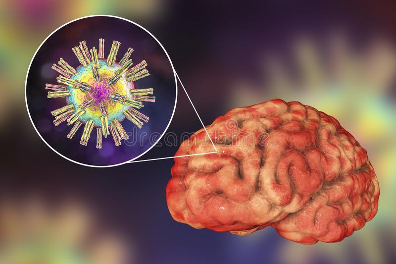 Коронавирус проникает в мозг некоторых пациентов